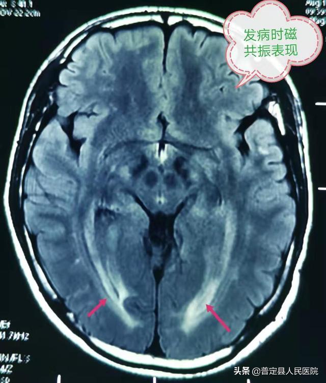 可逆性白质脑病综合征患者康复啦!