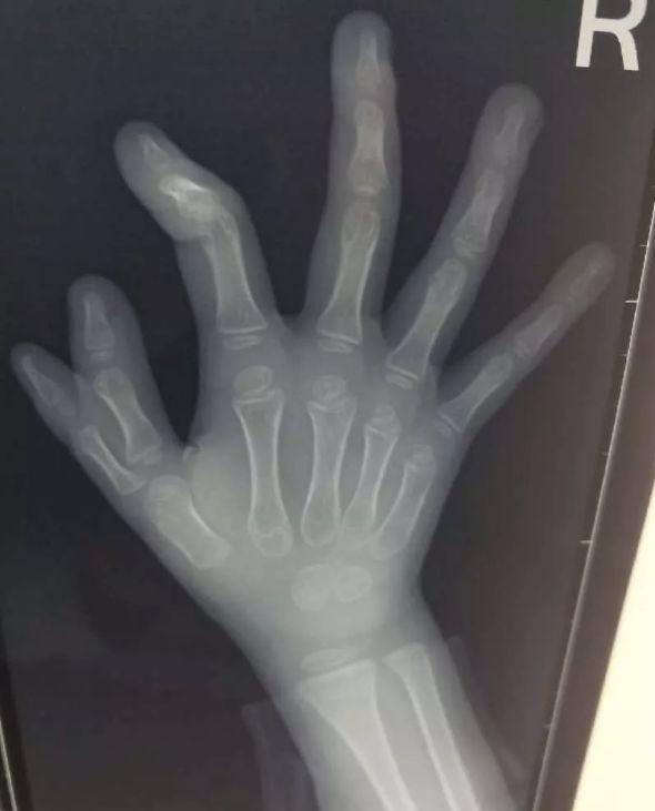 宝宝右手畸形手术时间
