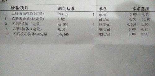 乙肝两对半结果,145阳性与135阳性,就表示乙肝吗?