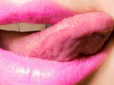 舌头中间裂口子是啥病图片