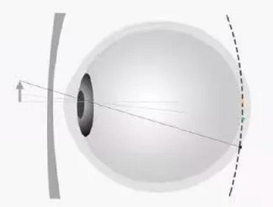 近视是什么原理_什么是近视