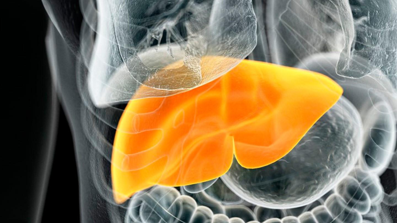 搜狐科学 | 瘦人也得脂肪肝?《肝病学杂志》称瘦型脂肪肝更易肝硬化