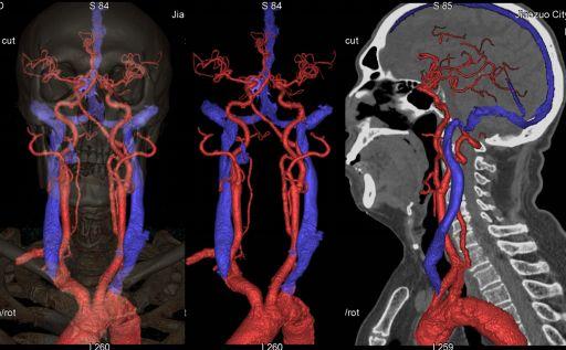 精准医学,影像先行,精准影像,技术先行。