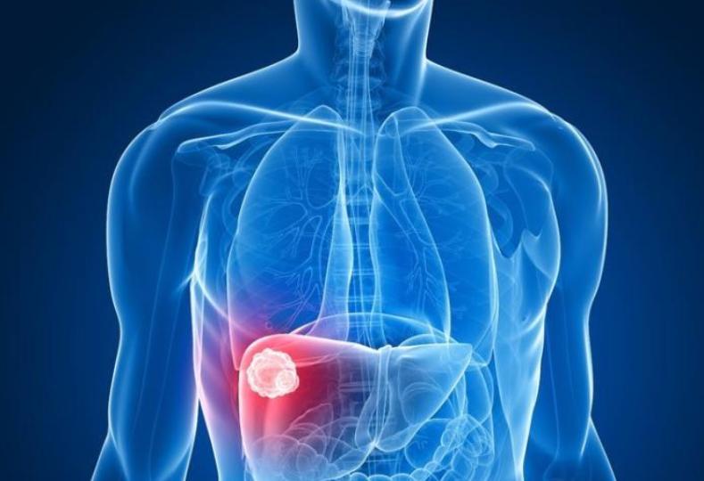咱们国家为什么容易得肝癌?这四个原因,防御住就可以远离它了