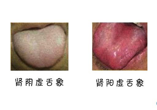 降火的原理_眼睛疲劳恢复器原理结构 败火茶...