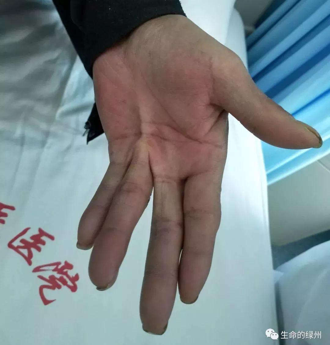 手指关节痛是风湿吗