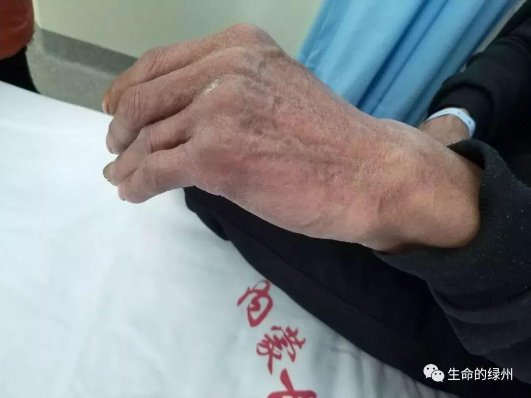 手指风湿性关节炎症状_全民健康网
