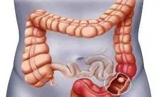 为什么胶囊要在小肠消化原理_胶囊内镜查小肠图片