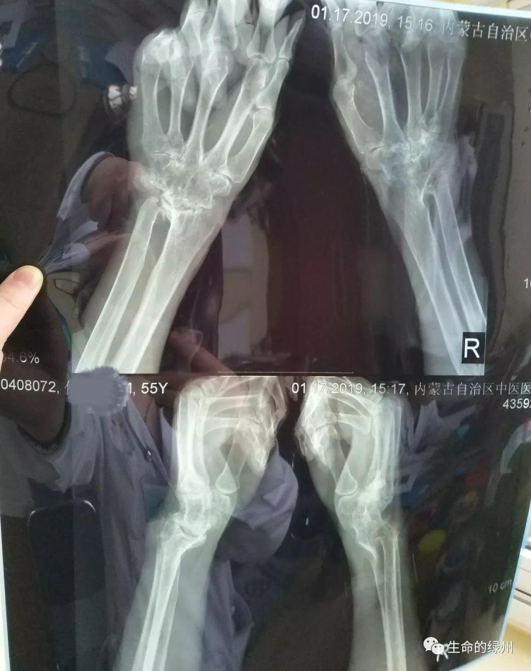 手指关节炎 腱鞘炎区别_丁香园