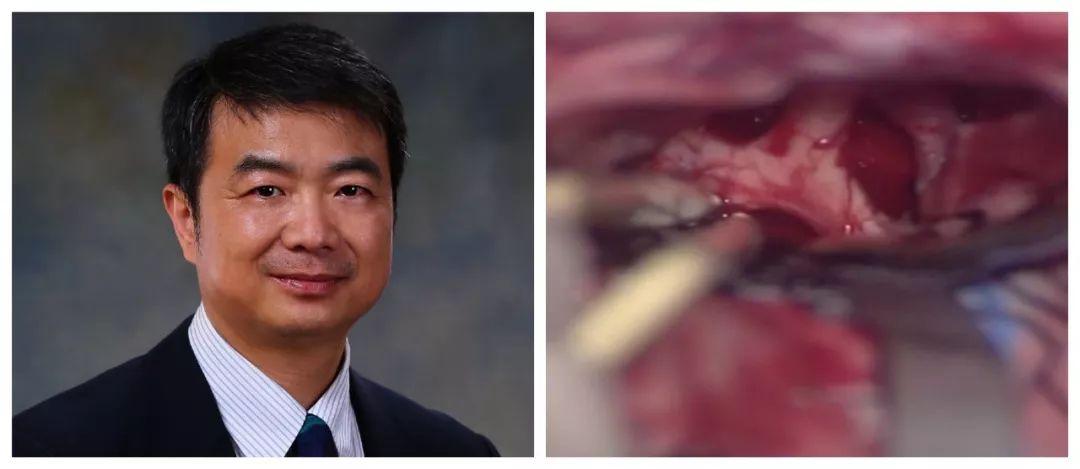 神刀博览| 天坛医院林松:额外侧入路经第四间隙切除颅咽管瘤  手术要点与视频