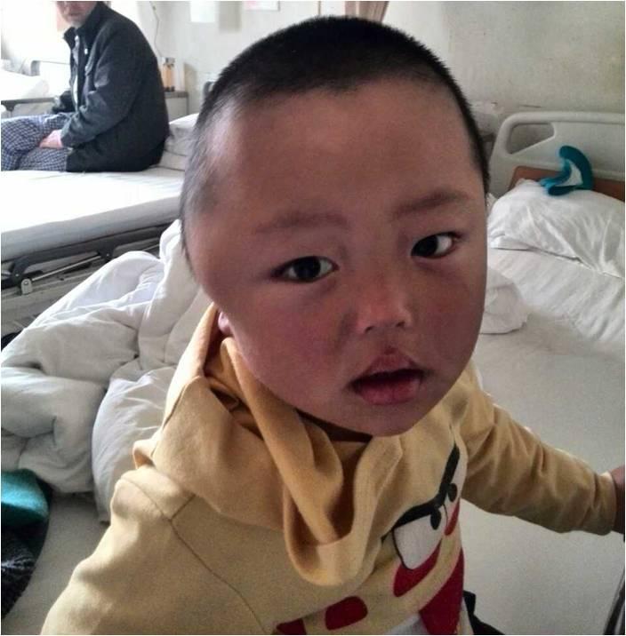 儿童罕少见病——汉-许-克综合征