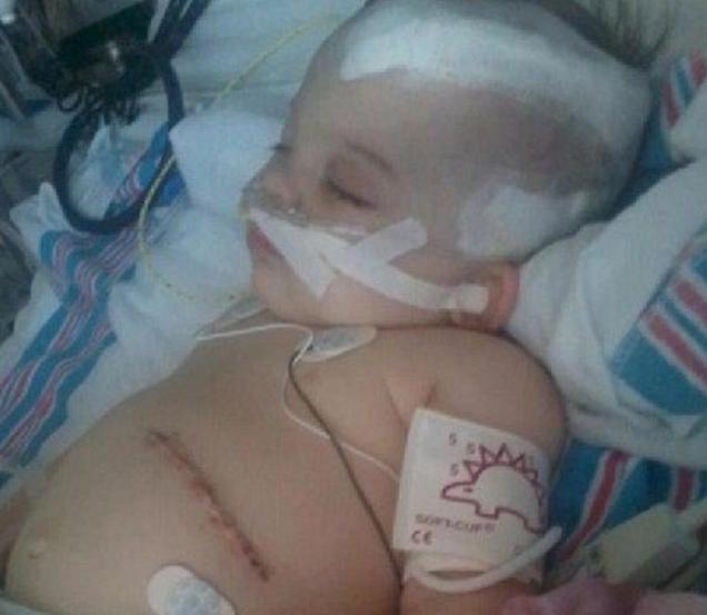 一岁女童因睡觉哭闹被亲爹摇晃致脑损伤,这些动作很致命,别大意