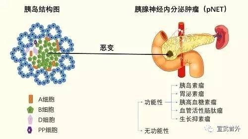罕见的肿瘤-胰腺内分泌肿瘤