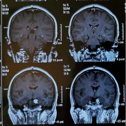贺晓生教授颅腔深部肿瘤手术:天幕缘脑膜瘤切除案例