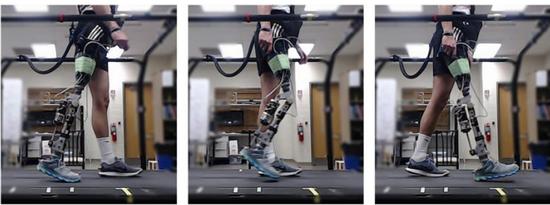 利用VR技术 帮助患者和医生更方便地安装假肢