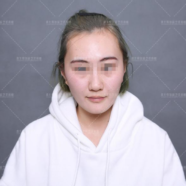 有的人改脸型手术加上这个项目,效果好太多!
