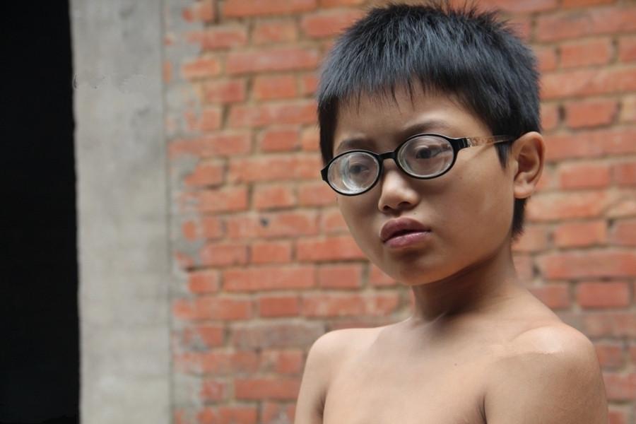 只因早产3个月,男童的眼镜片比啤酒盖还厚,生母继母都分不出