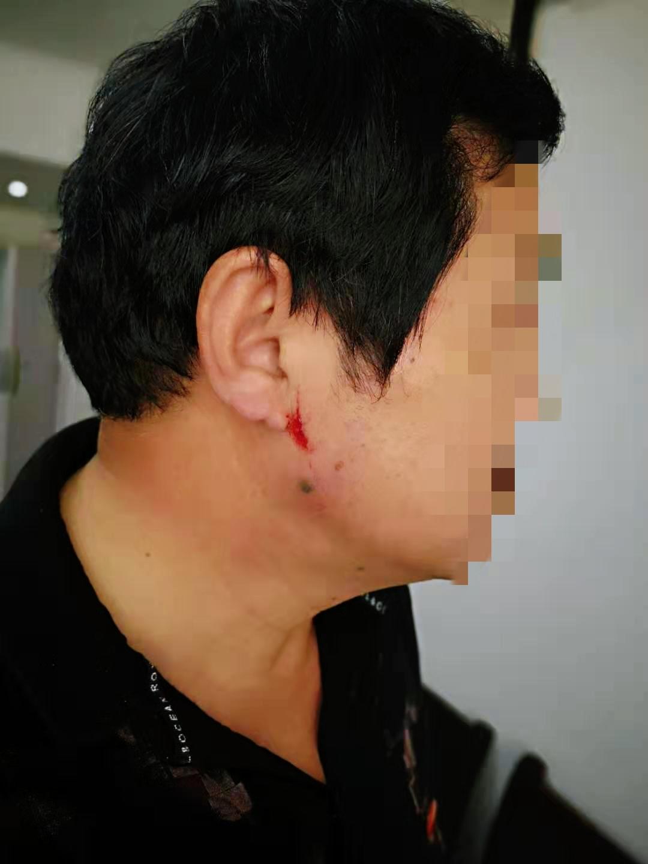 河南叶县司法局干部上班时间殴打老同事致其受伤住院