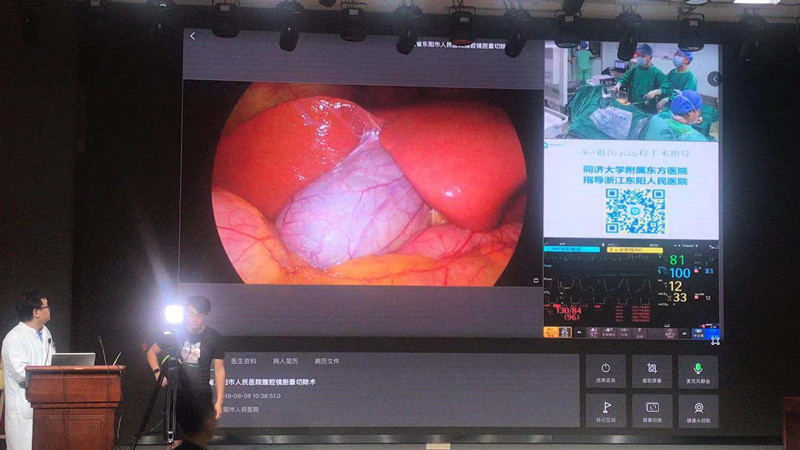 5G远程医疗真来了!首例胆病手术在长三角落地