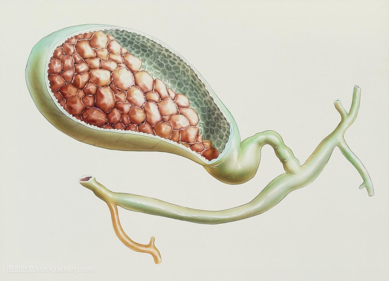 胆囊-百科