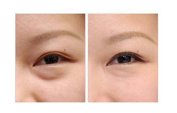 去眼袋手术后会展现出来的优点