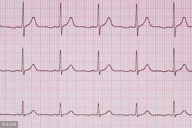 原创            心电图ST段改变,意味着心脏有什么问题吗?一文读懂