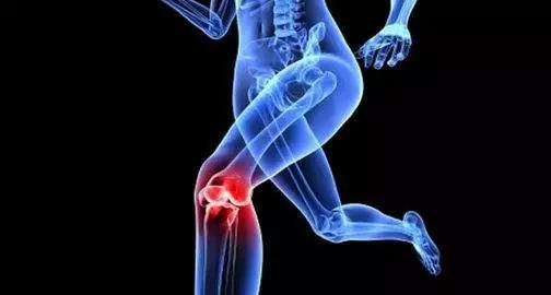 """【骨科医生关于""""膝关节骨性关节炎""""的几点建议,值得一看】膝关节骨性"""