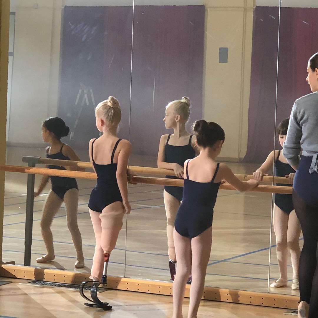 """原创 天生没有双腿的女孩,自豪地""""走""""在国际T台上,这画面真美"""