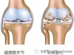 如何保护关节软骨
