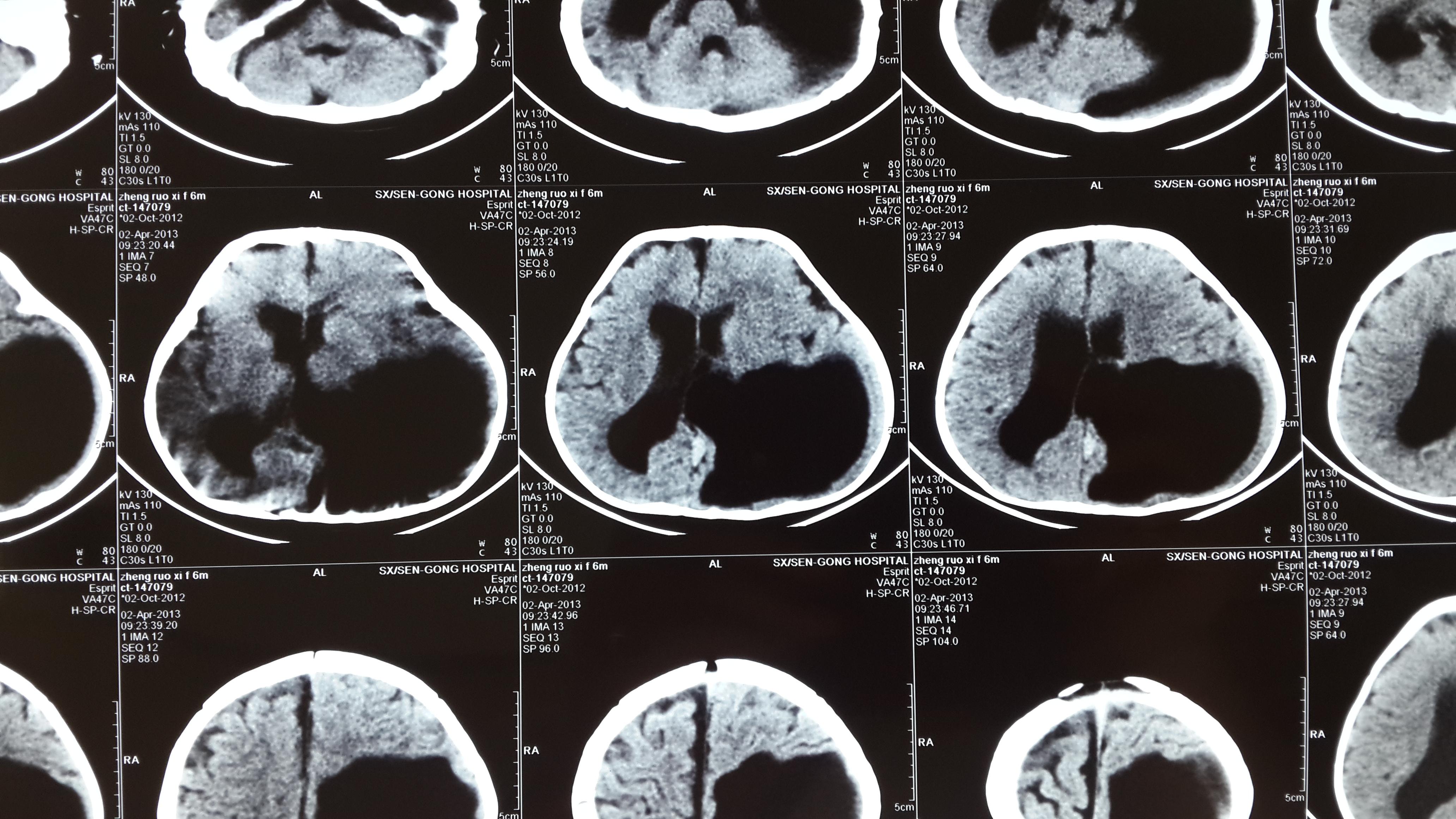 切莫忽视儿童脑发育不良的早期诊治—脑室穿通畸形的手术