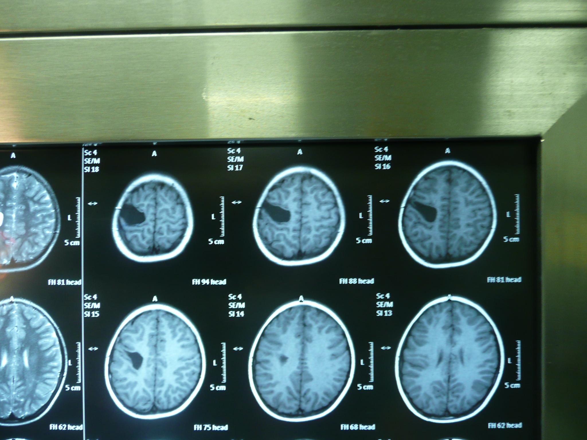 非常见颅内蛛网膜囊肿微创开颅手术治疗