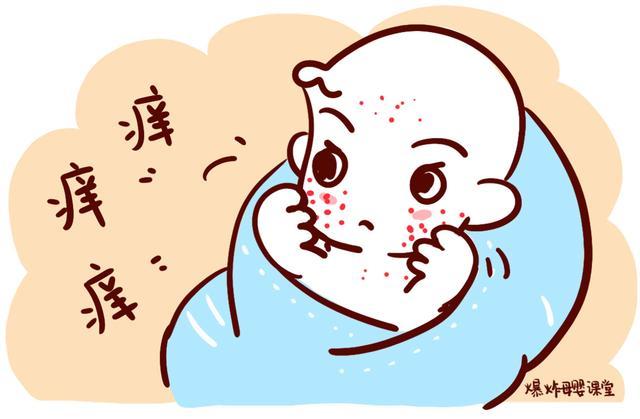"""宝宝湿疹是因为""""胎毒""""引起的?家长做错4件事,宝宝湿疹难治愈"""