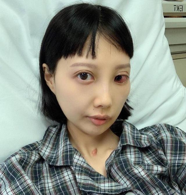 30岁香港女歌手积极抗癌7年 如今病情恶化导