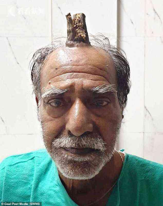 老人跌倒后头上长角,理发师越剪越长如今10厘米
