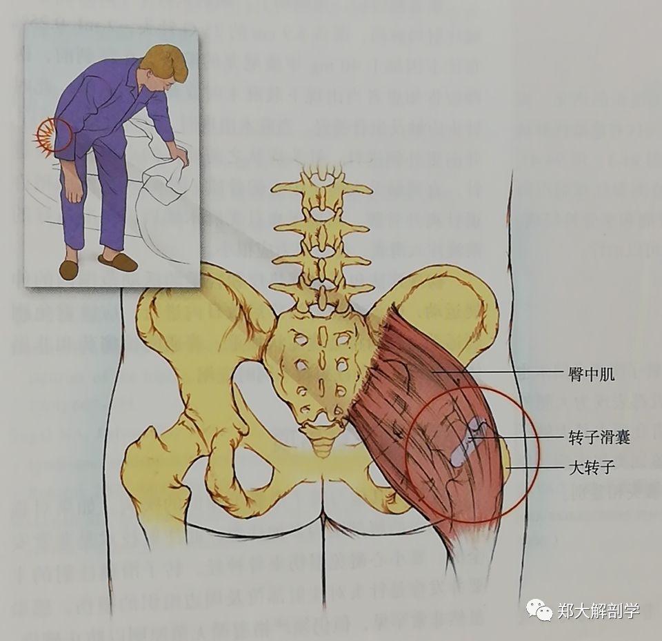 坐骨神经痛的临床表现有哪些