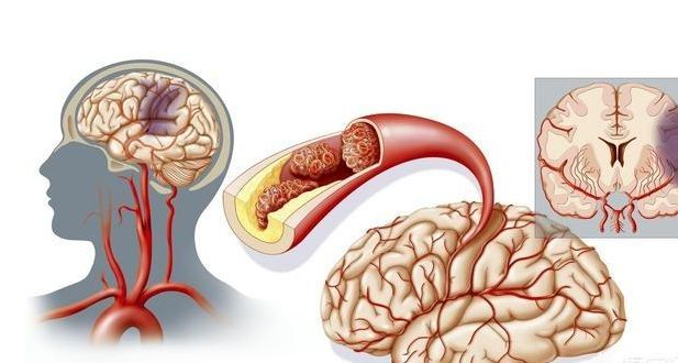 脑ct都能查出什么病 做一次脑ct检查的危害到底有多大?