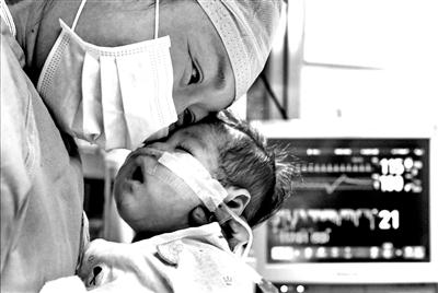 66天女婴换上4岁男童心脏