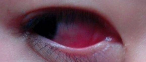 出大事儿了!带宝宝去成人泳池游泳之后,宝宝出现了红眼病!