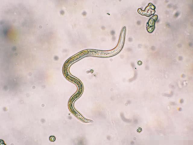 常见体内寄生虫   1、绦 虫