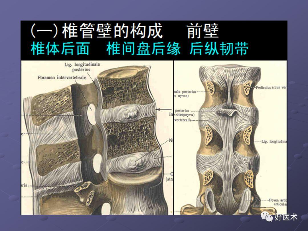 脊柱常见肿瘤及肿瘤样病变的影像表现+鉴别诊断