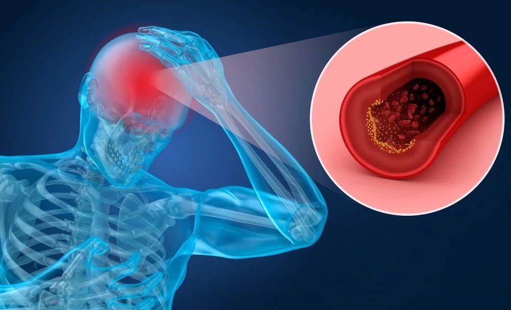 健康-40岁后,体检时查查脑血管,真的很重要!