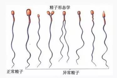 试管婴儿男人精子存活率低可以吗