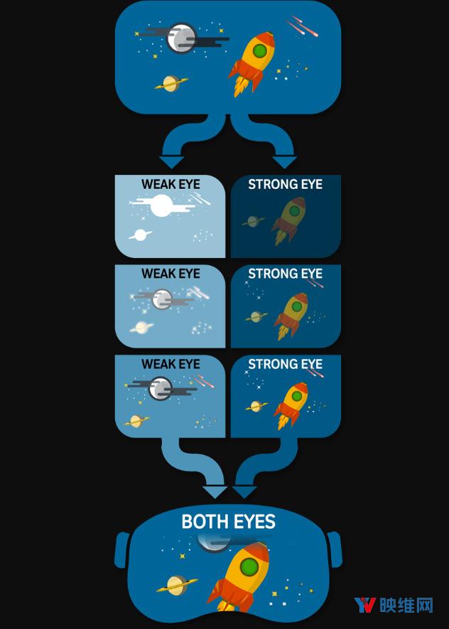 VividVisionVR训练系统帮助斜视患者感知立体深度、阅读文本