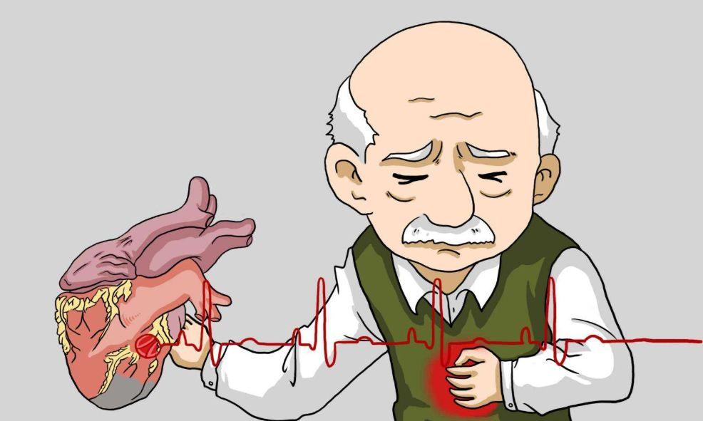 心梗不影响寿命