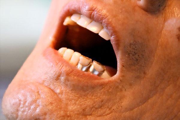 中老年人口臭_为什么早上起来会口臭 彻底去除口臭