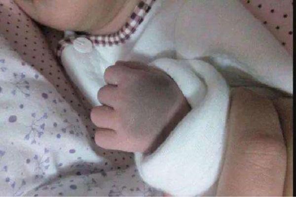 """新生儿有胎记,遭周围人嘲笑:""""钟无艳""""再现?孕妈在孕期别犯错"""