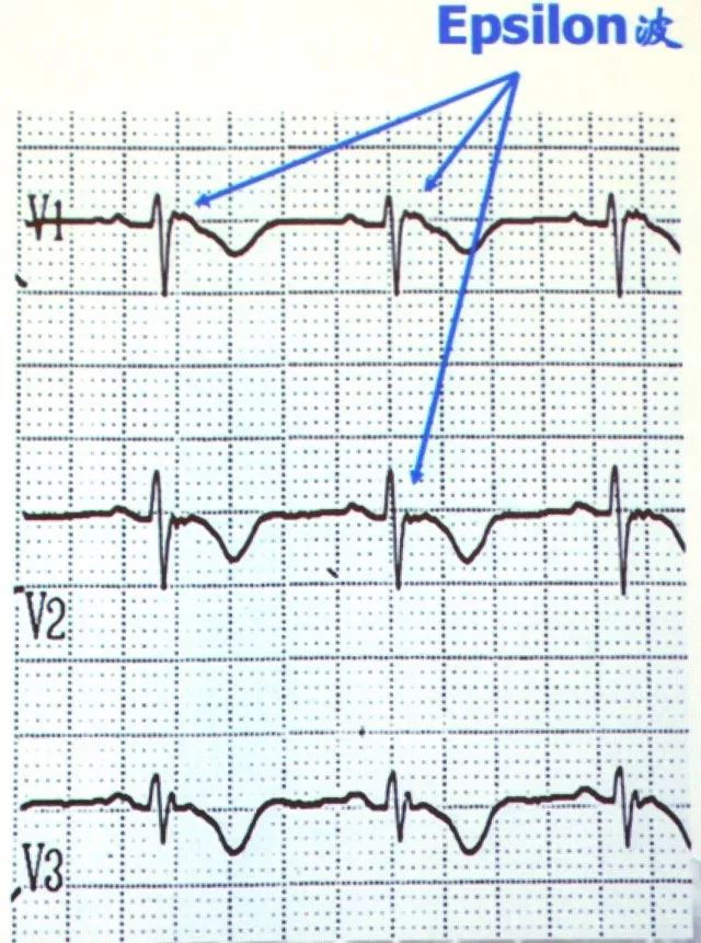 19张图,归纳心脏性猝死的心电图预警