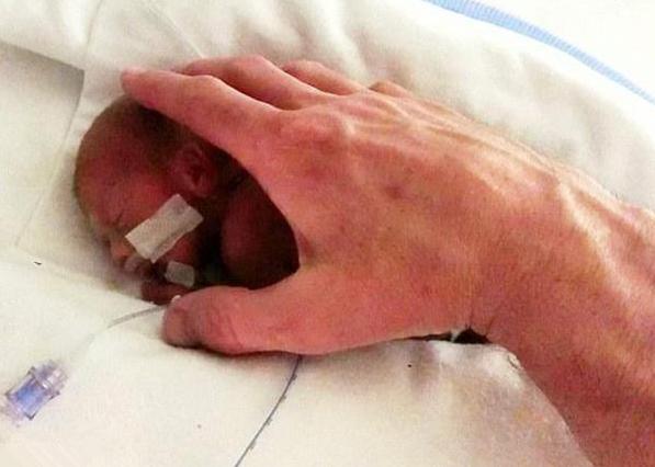 出生只有巴掌大的宝宝,妈妈坚持要留下孩子,如今漂亮可爱