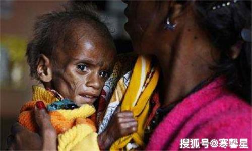 饥饿人口_联合国粮食计划署:疫情或导致全球饥饿人口翻倍