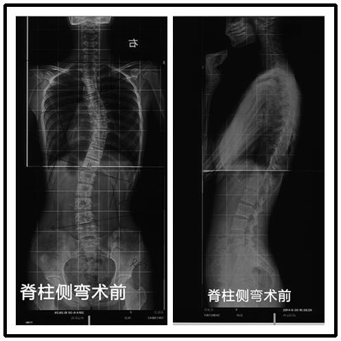 【微创案例】陶惠人:胸腔镜下微创治疗脊柱侧弯案例